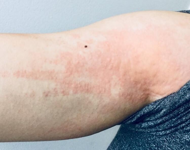ダニアレルギー